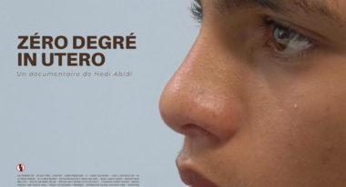 img-Zéro degré In Utero